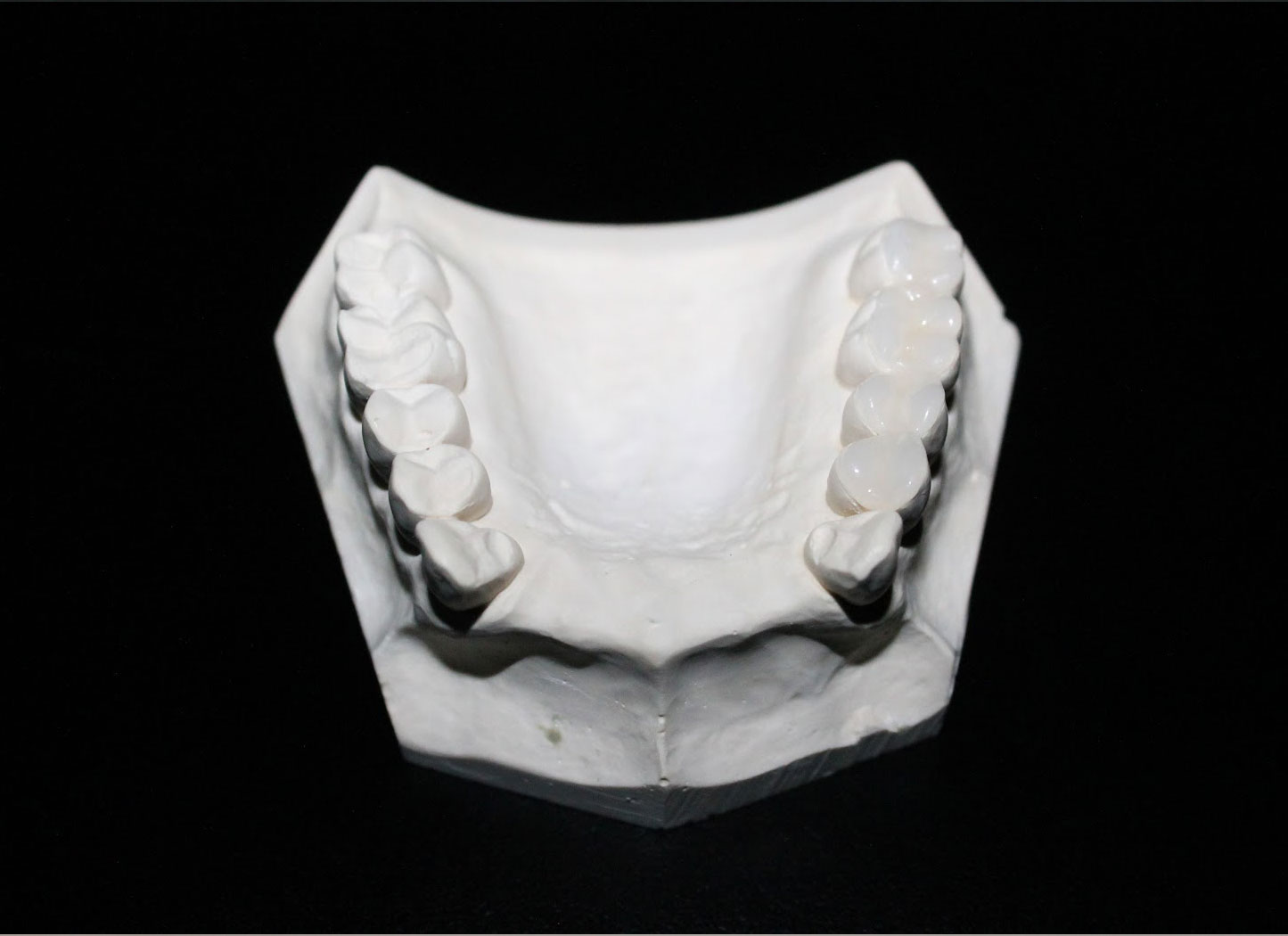 Temporary Occlusal Block