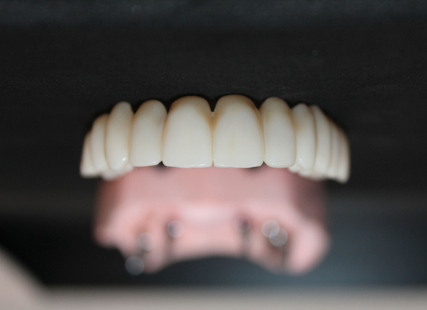 picture of temporary crowns from out dental laboratory